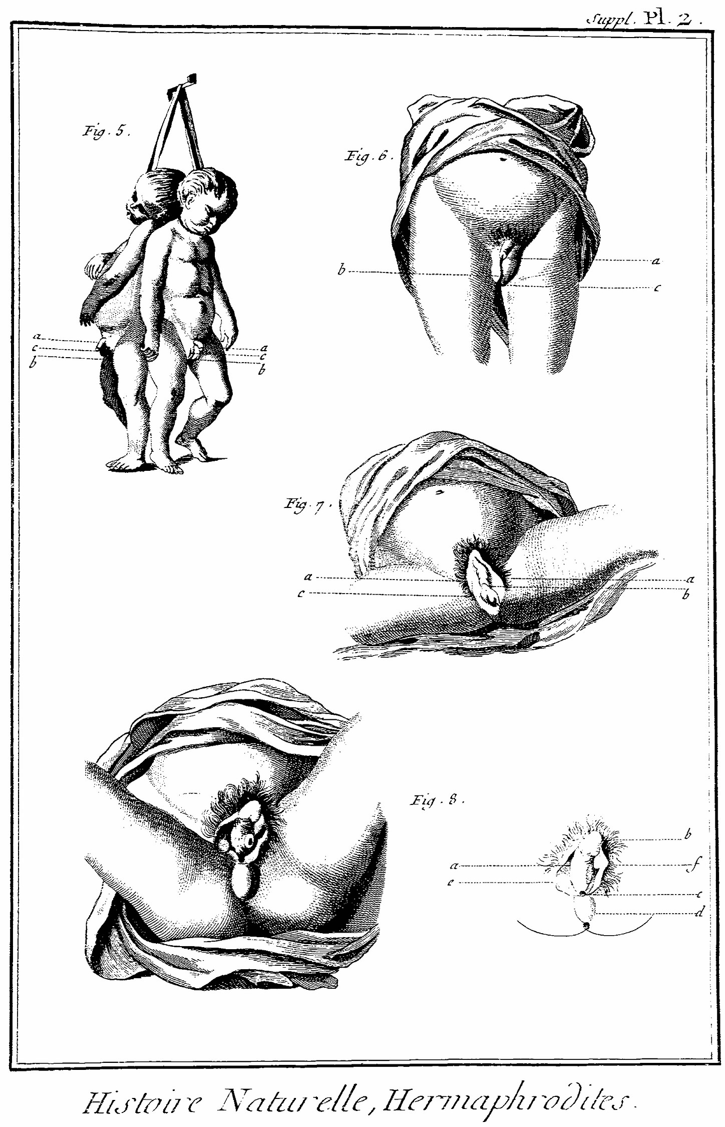 Medical Anatomical Chart of Intersex Individuals -- 19th Century