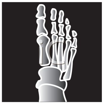 0511-0810-1304-2945 Cartoon X-ray of a Foot clipart imageXray Machine Clipart