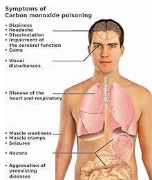 CO_toxicity_symptoms_(en)